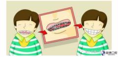 东莞南城儿童牙齿矫正:几