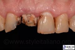 前牙冠根折的修复