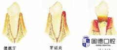 东莞南城洗牙:牙结石和洗牙