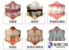 东莞东城洗牙:初次洗牙六个注意