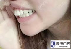 门牙轻微外凸需要矫正牙齿吗?