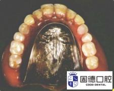 怎样复制义齿?