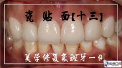 瓷贴面修复前牙氟斑牙一例