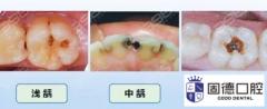 牙齿深龋坏了能补牙吗?