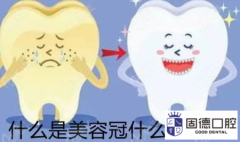 东莞塘厦牙齿贴面:美容冠