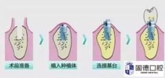 横沥口腔种植:错过种牙最