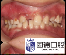 道滘儿童牙齿矫正:小朋友的牙齿
