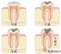 高埗根管治疗:根管治疗过的牙齿