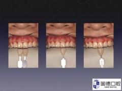 牙齿比色的步骤及注意事项