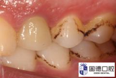 牙齿变色的原因与修复方法