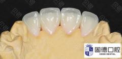 全瓷牙贴面和牙冠哪个好?