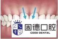 儿童牙齿需要矫正的信号是什么?