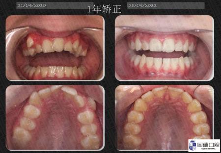 樟木头牙齿矫正:牙齿矫正