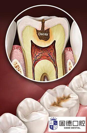 企石儿童口腔医院:孩子蛀牙了需
